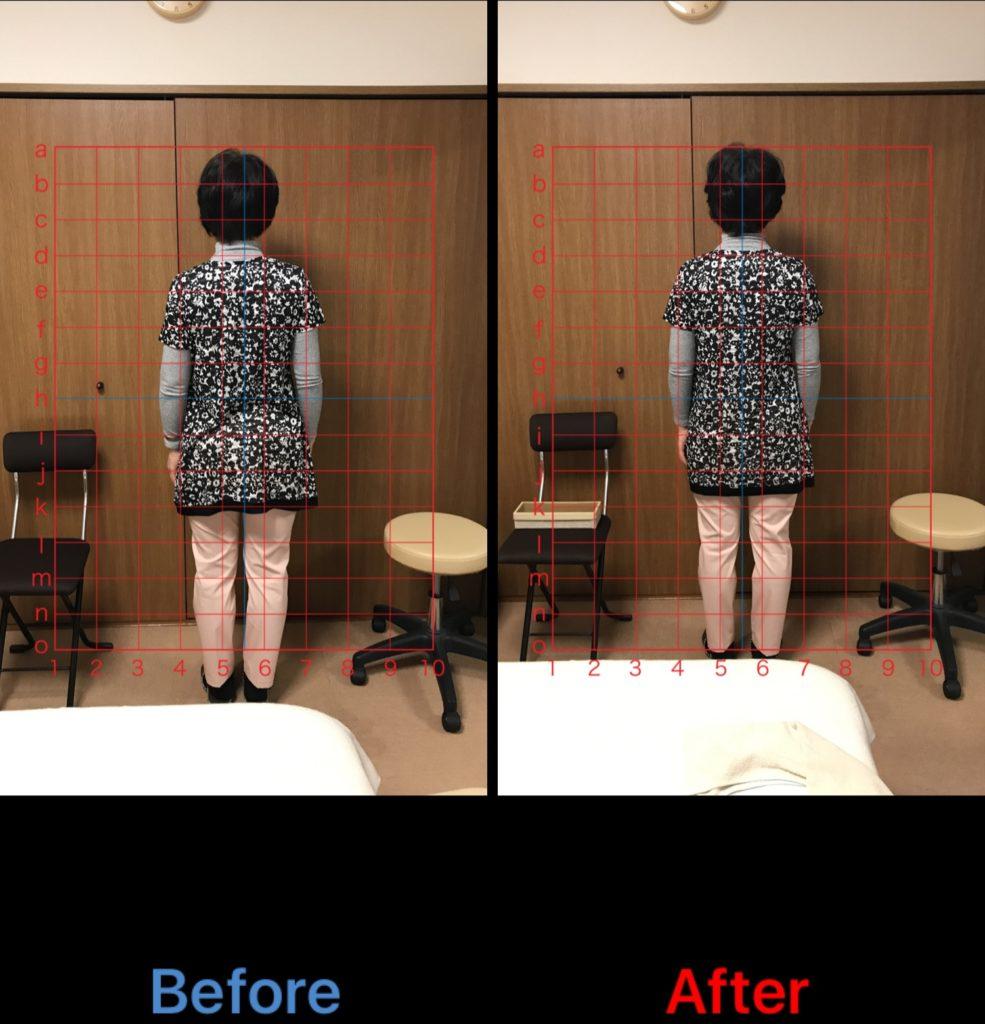 首・肩・腰の痛み、側弯症のビフォーアフター