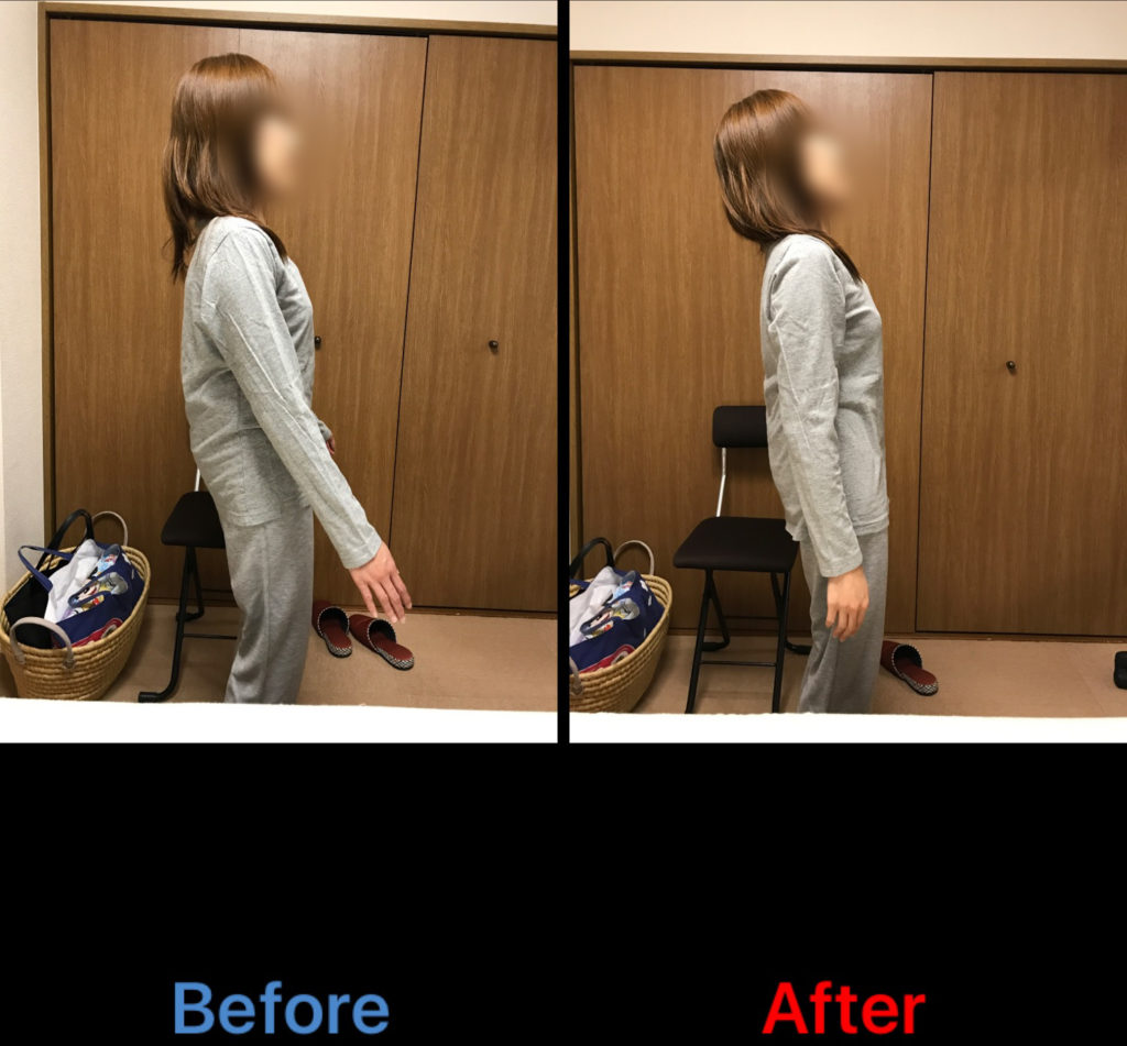 側弯症、腰痛のビフォーアフター