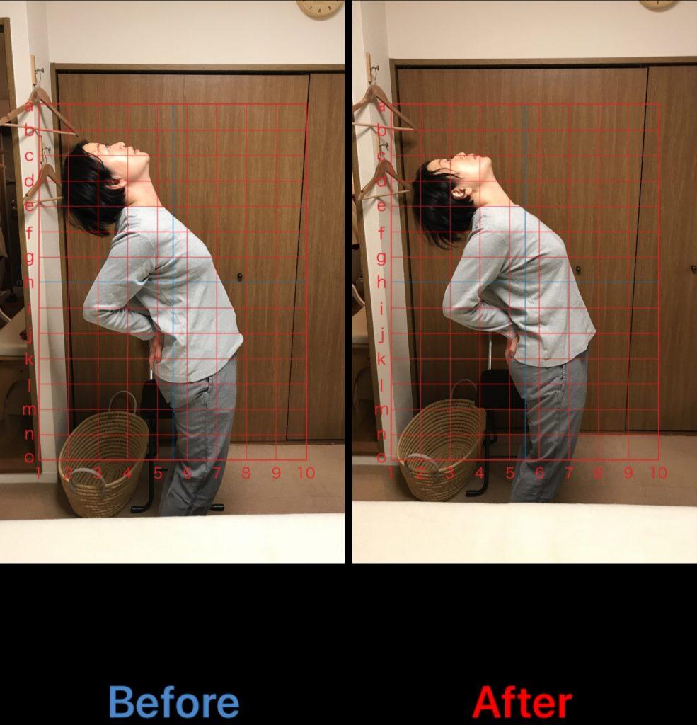 腰痛のビフォーアフター